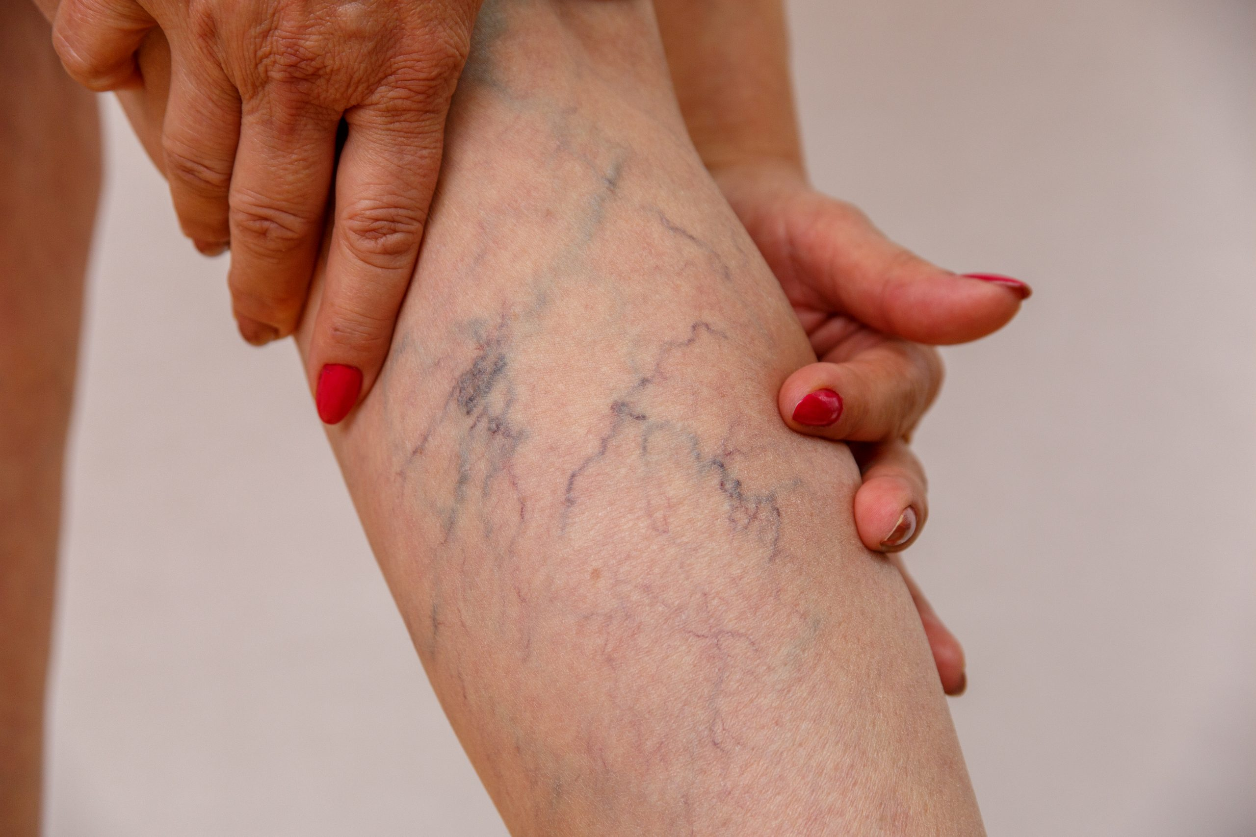 Dr. Caroline Novak and Dr. Kamran Saraf are widely considered the best vein doctors near Northport. This article introduces you to the best vein doctors and answers vein treatment FAQs.