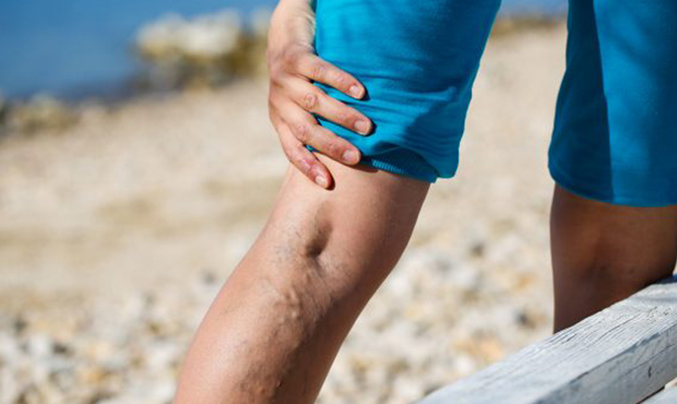 Do you have questions about the diagnosis and treatment of varicose veins? In this article, a vein clinic near Amityville discuses the varicose vein treatment process.