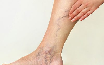 What Can I Expect from My Varicose Vein Treatment Near Suffolk County?