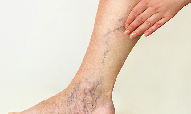 Are you wondering what happens during a varicose vein and spider vein treatment? Our spider vein clinic in Lindenhurst guides you through the entire spider veins treatment process.