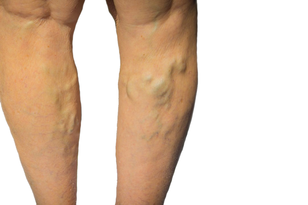 Are you concerned about varicose vein treatments? In this article, our varicose vein center in Suffolk County, Long Island, describes the varicose vein treatment procedure.