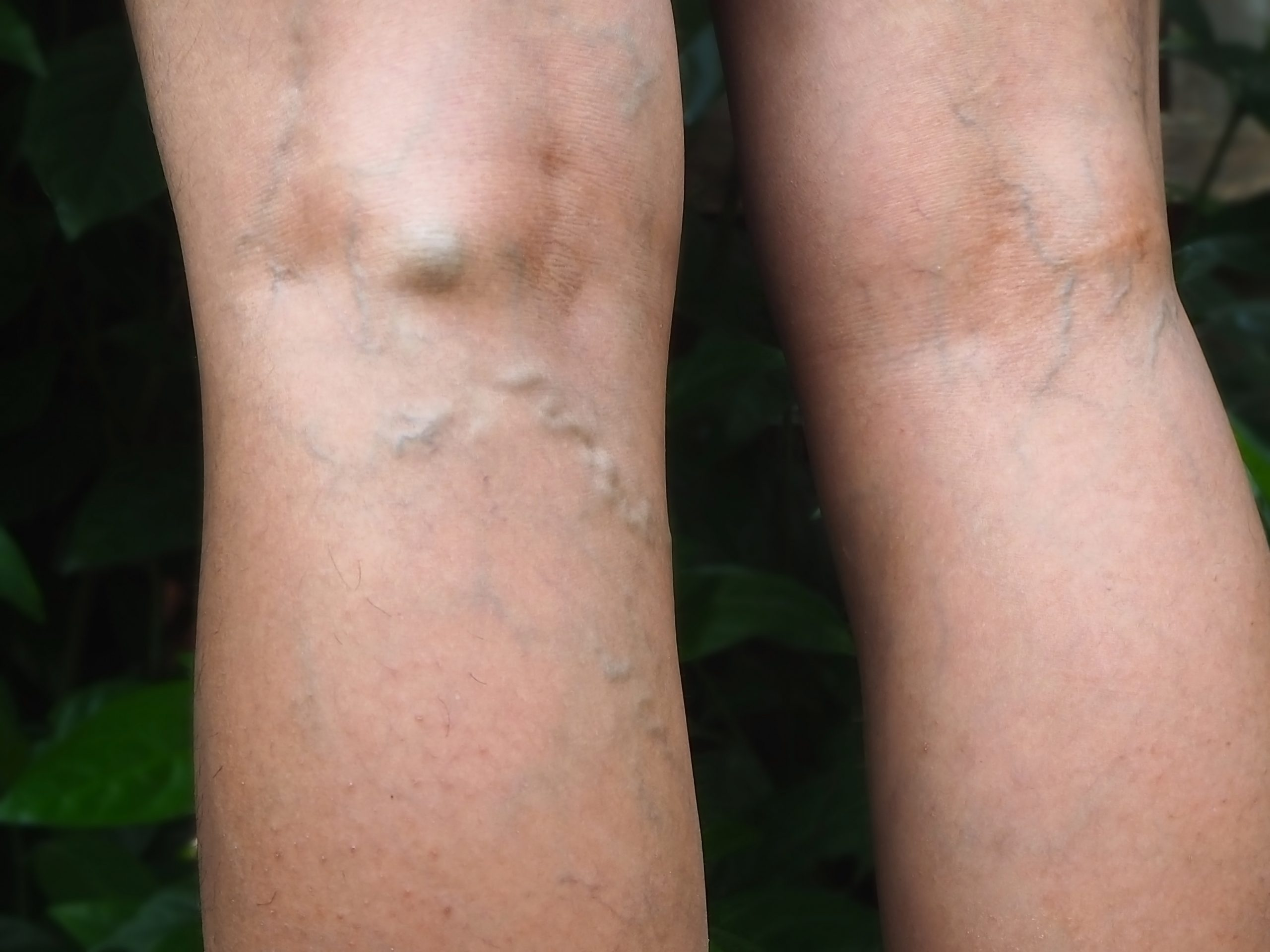 """Are you wondering, """"what can I expect from a spider vein treatment center near me in Suffolk County, Long Island?"""" In this article, we describe the varicose vein treatment process."""