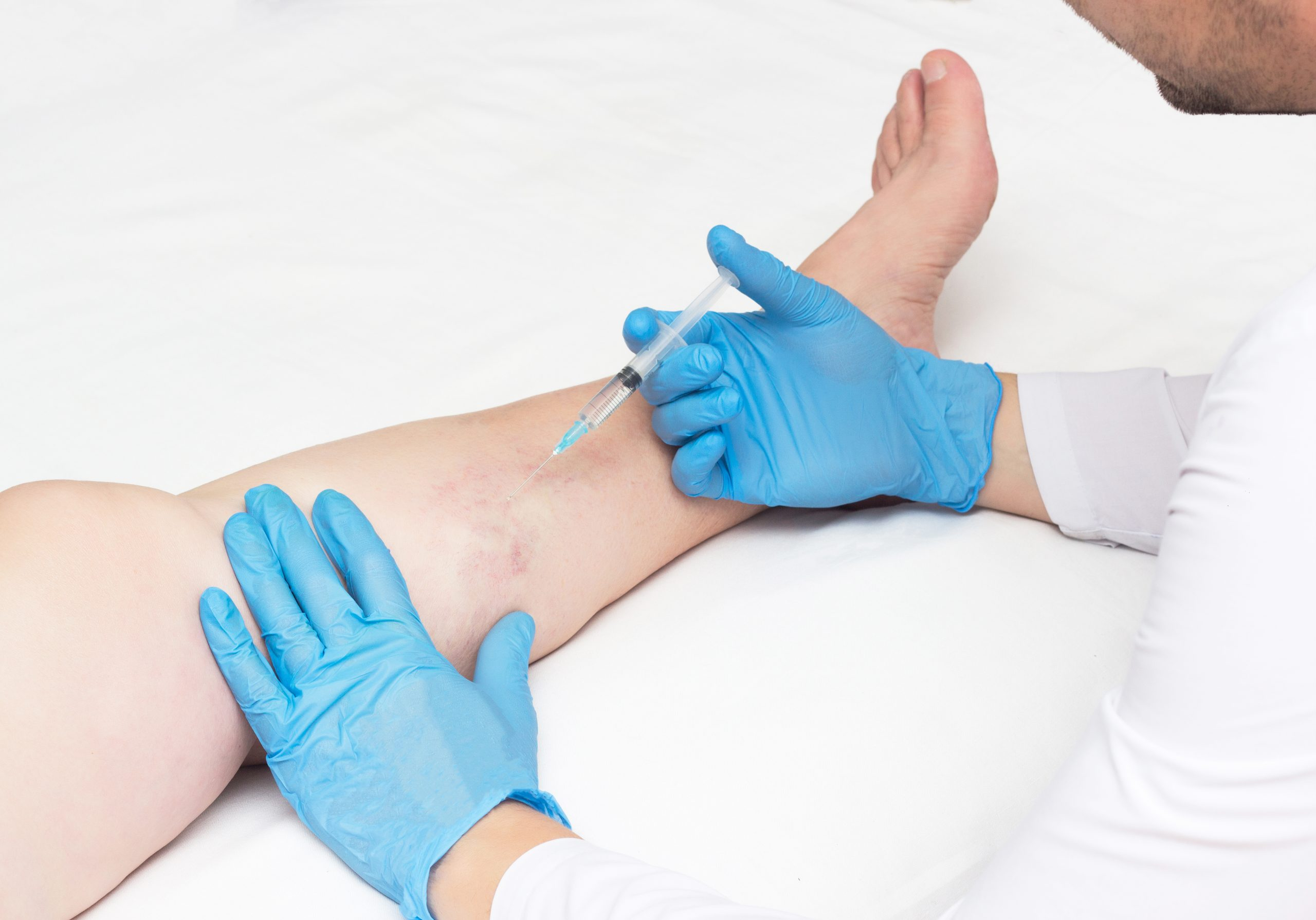 Are you looking for the best vein center in Long Island? In this article, we discuss how to find the best vein doctors and state-of-the-art vein treatment centers in Long Island.