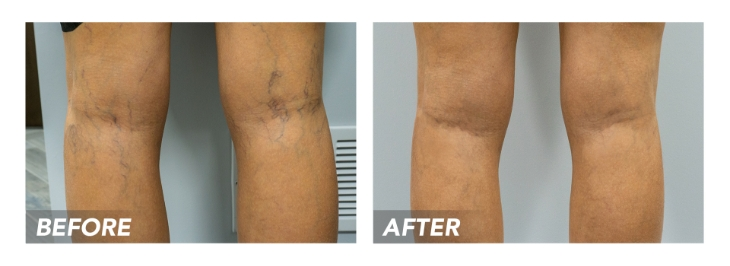 Endovenous laser ablation is a minimally invasive vein treatment for the underlying chronic venous insufficiency and varicose veins. The vein doctor delivers local anesthesia and makes a small incision on the skin's surface. The incision serves as an entry point for an endovenous laser that's guided, via vascular imaging, into the diseased saphenous vein. Once the endovenous laser is inside the problematic vein, the doctor delivers tumescent anesthesia along its walls. The laser fiber is activated to general laser energy that irritates and destroys the diseased vein, rerouting the accumulated blood into healthier leg veins. This restores optimal blood circulation to the heart.