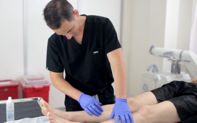 A Comprehensive Guide to Varicose Vein Treatment in Suffolk County