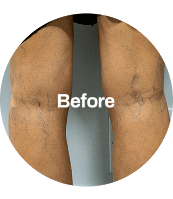 BEFORE_AFTER_2-min